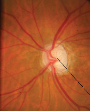 Глаукома мозга